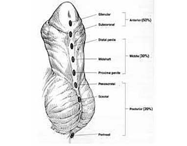 Hipospadias1