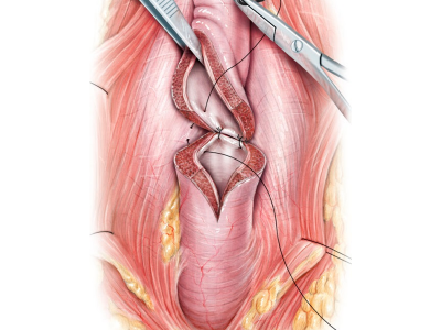 Urethroplasty Surgeries